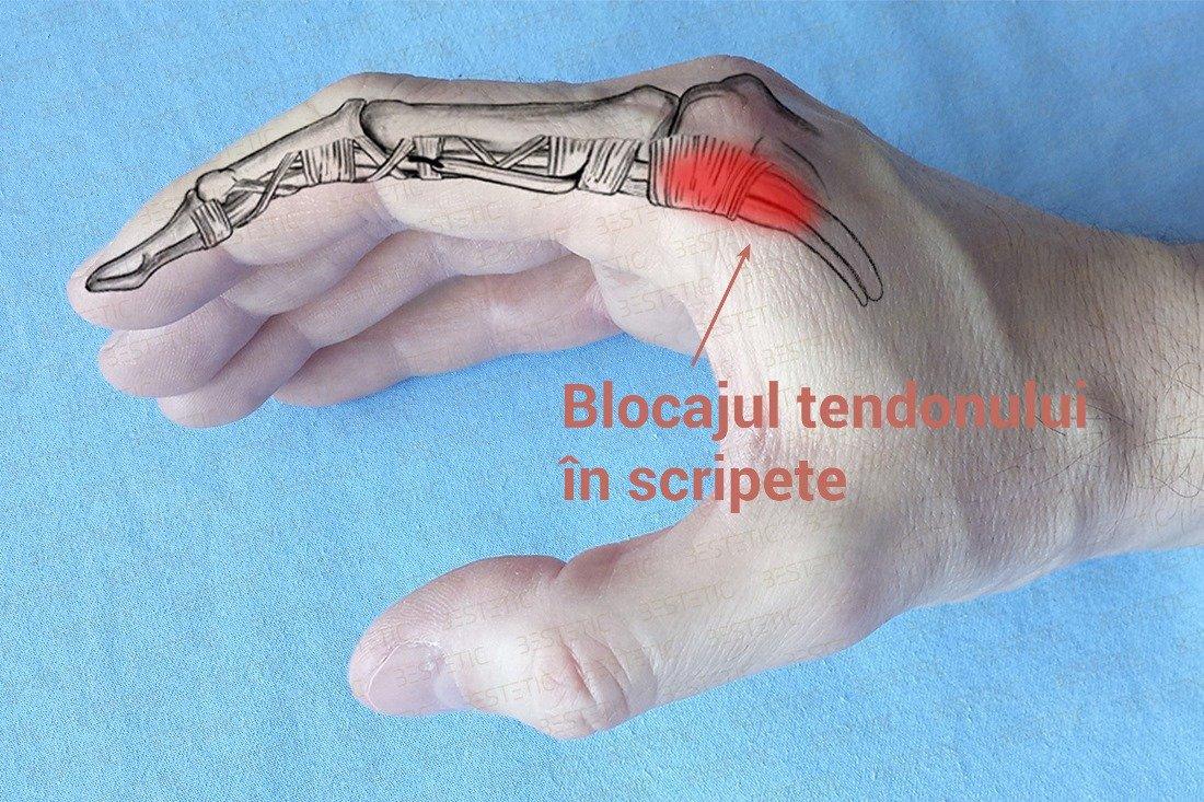 Artrita unui deget pe braț, Guta la articulatiile degetelor de la mana