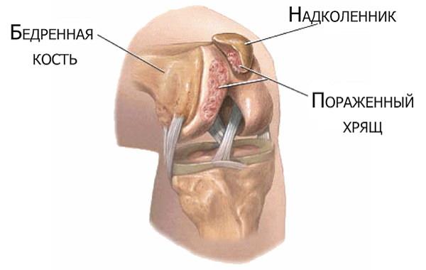lăstari în tratamentul articulației genunchiului