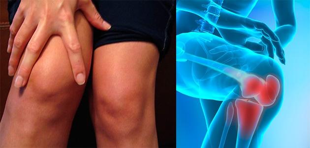 exacerbarea artritei tratamentului articulației genunchiului artrita genunchiului simptome de 1 grad