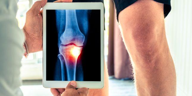 tratamentul genunchiului prin entorsă musculară