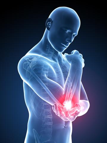 lista unguentelor pentru artroza genunchiului artroza articulațiilor necovertrale c3-c7
