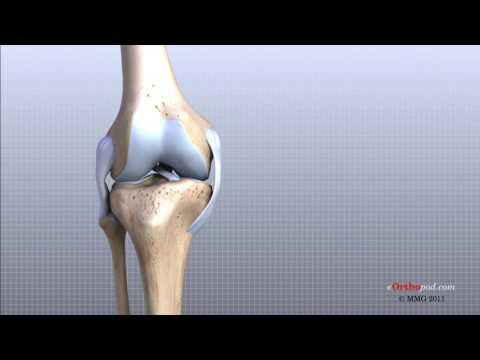 Articulațiile rănesc stricate