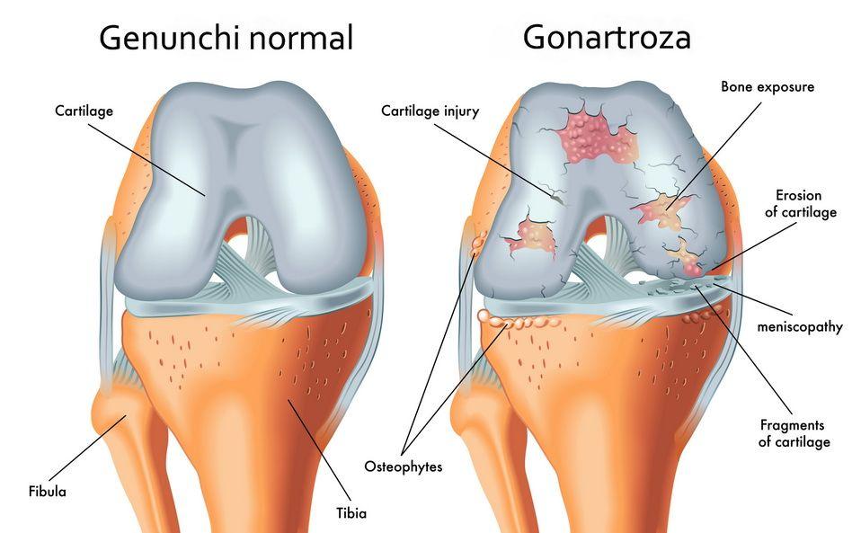 medicamente pentru tratarea artrozei care deformează genunchiul