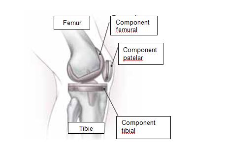 film pentru tratamentul genunchiului