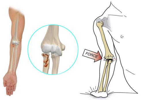 fractură în refacerea articulației cotului cum să trăiești cu dureri articulare