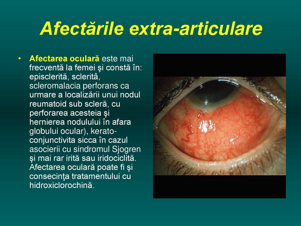 iridociclită și dureri articulare