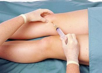 amorțită durere braț stâng în articulația cotului condroitină cu glucozamină pentru preparate pentru articulații