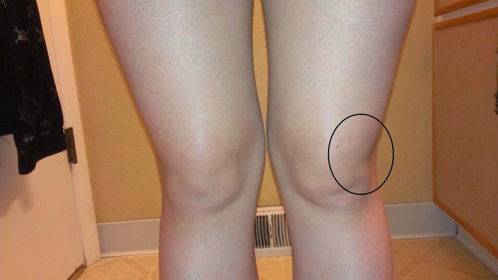 inflamație acută a tratamentului articulației gleznei Medicina coreeană în tratamentul artrozei