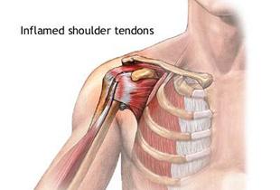 ligament rupt pe tratamentul articulației umărului