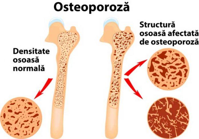 medicamente pentru osteoporoză articulară