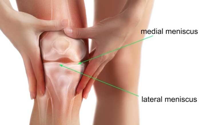 dureri articulare datorate tratamentului nervos deformarea artrozei simptomelor genunchiului și tratamentul
