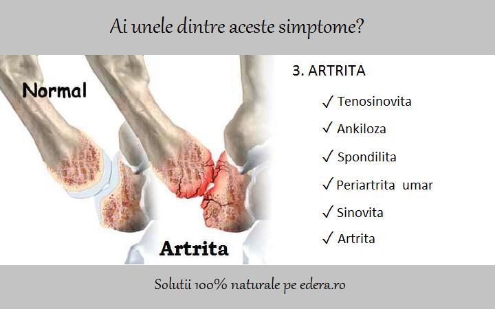 meniu de artrită articulară durerea articulară a mărului adam