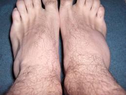 artroza tratamentul său cu exerciții terapeutice unde este tratată artrita gutoasă
