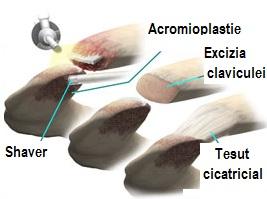 osteoartrita articulației