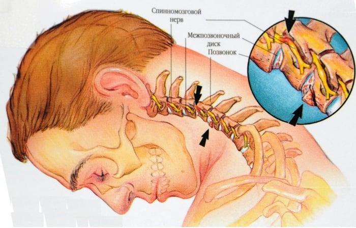 Osteocondroza cervicala: simptome si tratament Osteocondroza unguentului gâtului