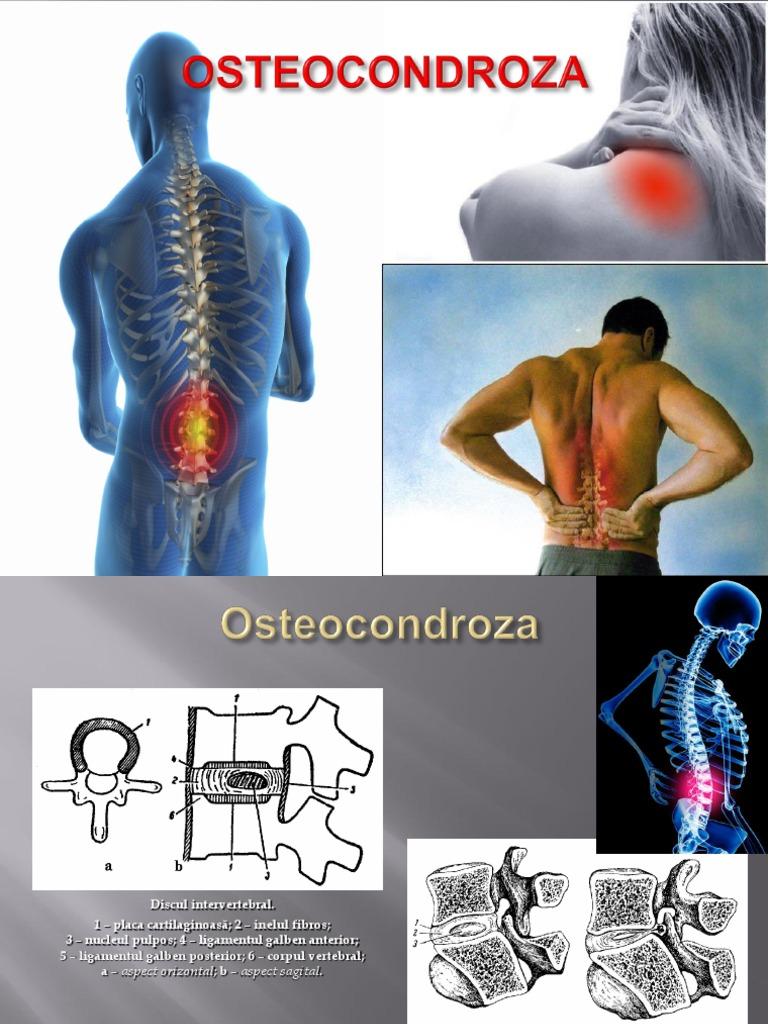 Preparate pentru osteochondroza toracică cervicală
