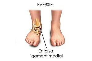 refacerea ligamentelor de gleznă după întindere dureri articulare pantovigar