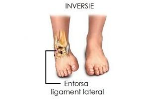 refacerea ligamentelor de gleznă după întindere ortoped tratează articulațiile