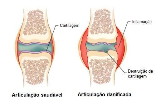 tratamentul durerii articulare la rece dureri musculare la nivelul articulațiilor