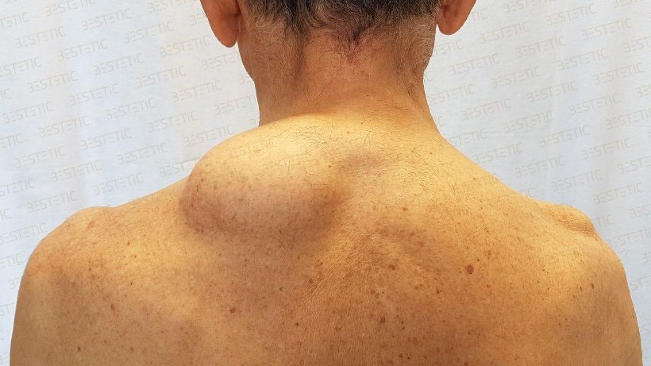 simptomele tratamentului lipomului cotului Tratamentul artrodezei articulare calcaneale