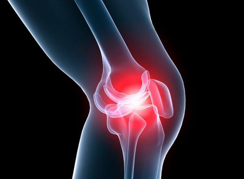 Starea locală a artrozei genunchiului
