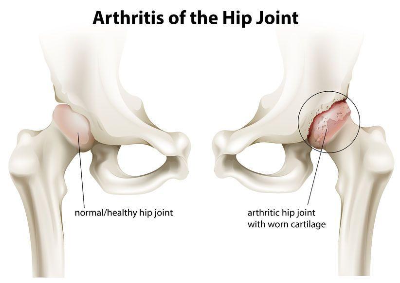 supraponderale și durere în articulațiile șoldului