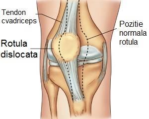 după alergarea durerii în articulația șoldului gel de răcire articular Preț