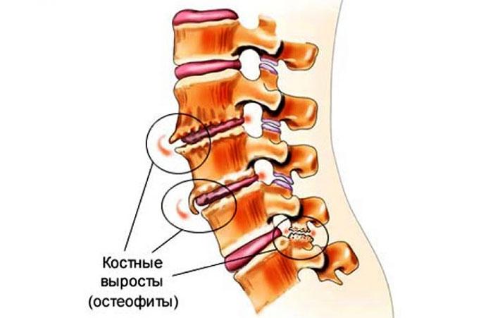tratați creșterile pe articulații