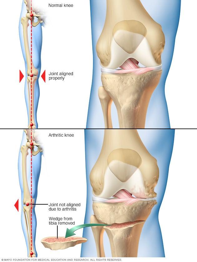 susan pentru boala articulară pentru dureri articulare, luați gelatină