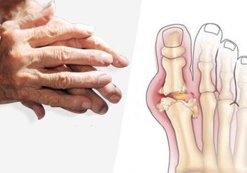 articulațiile doare, dar nici un simptom tratamentul coxartrozei deformane ale articulației șoldului