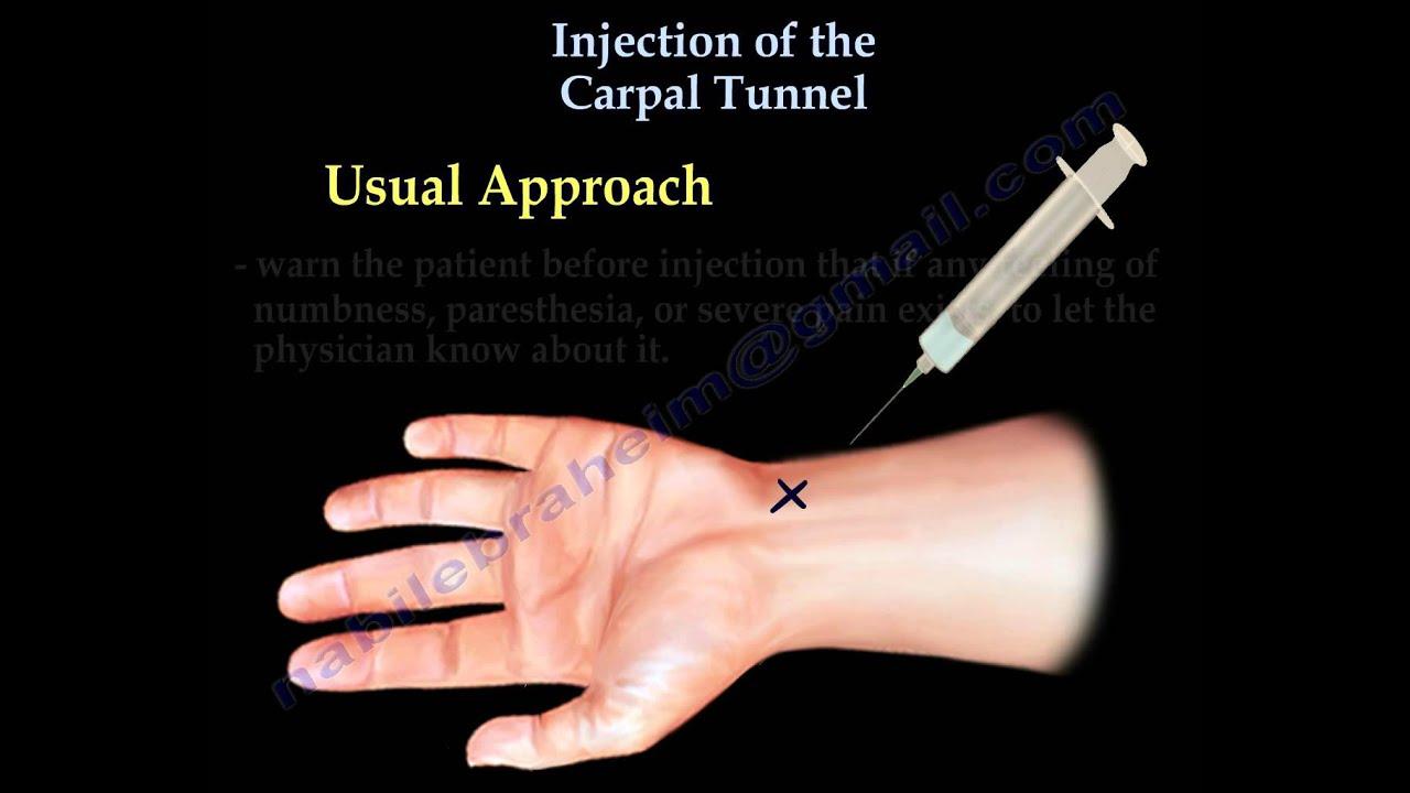tratamentul articular cu introdropină