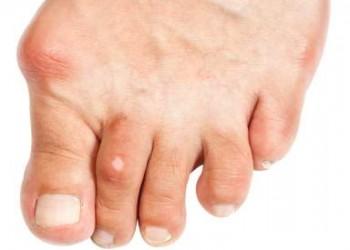 tratamentul artrozei degetelor
