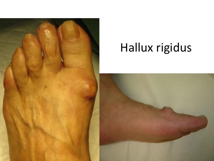 tratamentul artrozei post-traumatice a degetului de la picior