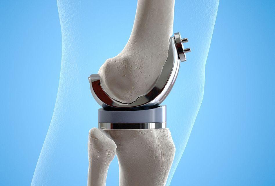 tratamentul chirurgical al artrozei genunchiului în clinici poliedel pentru dureri articulare