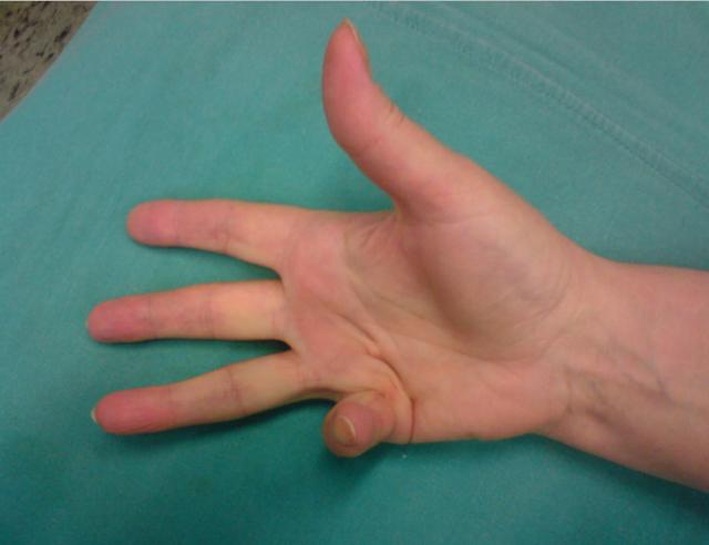 inflamația articulațiilor degetelor mari relocarea durerii articulare