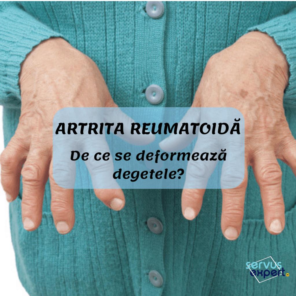 tratamentul degetelor de la artrita reumatoidă