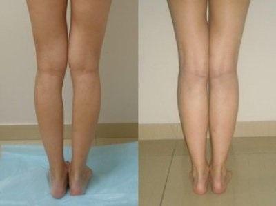 tratamentul genunchiului hallux valgus