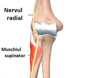 tratamentul nervului ciupit cu articulația cotului
