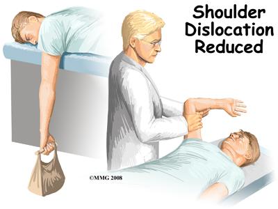 tratamentul unei luxații obișnuite a articulației umărului tratamentul modificărilor distrofice degenerative ale articulației genunchiului