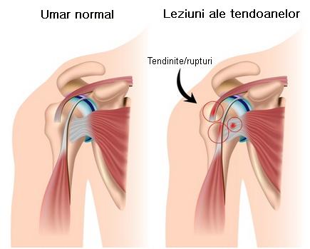 umflarea durerii articulațiilor umărului durere la vârful genunchiului