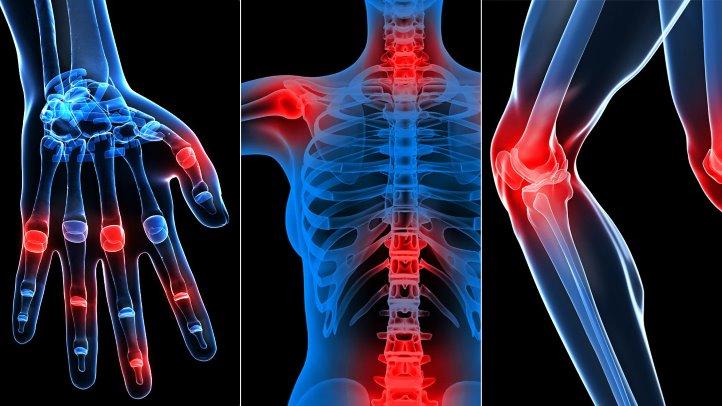 un mod eficient de a trata artroza