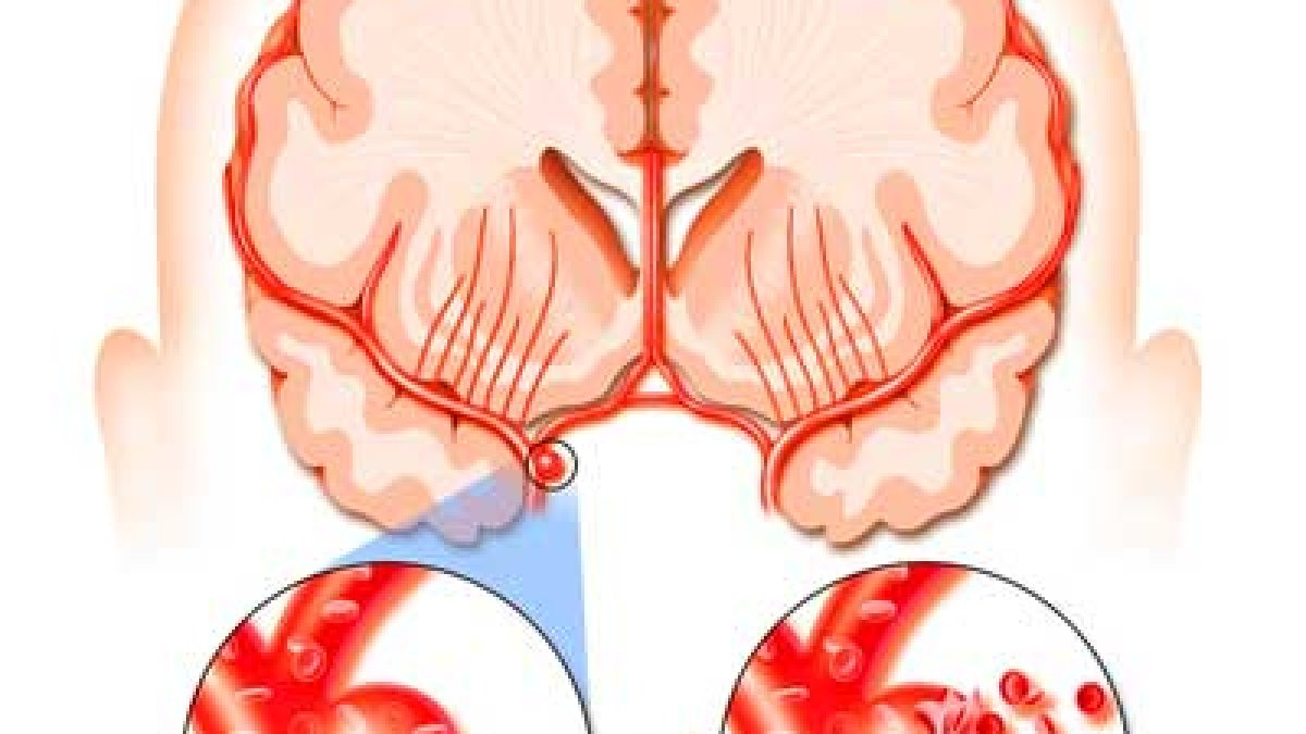 unguente pentru articulații după un accident vascular cerebral
