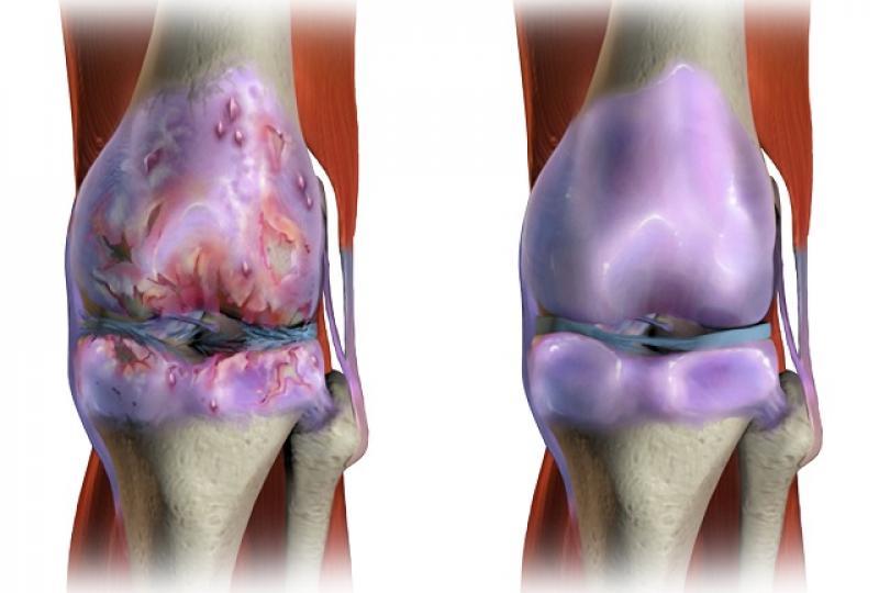 artrita purulentă a simptomelor articulației umărului durere sub cupa genunchiului
