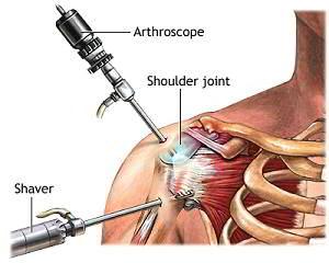 cel mai eficient tratament pentru artroza umărului