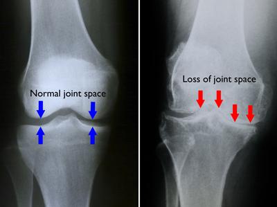 Gonartroza (artroza genunchiului) - cauze, simptome si tratamente - CSID: Ce se întâmplă Doctore?
