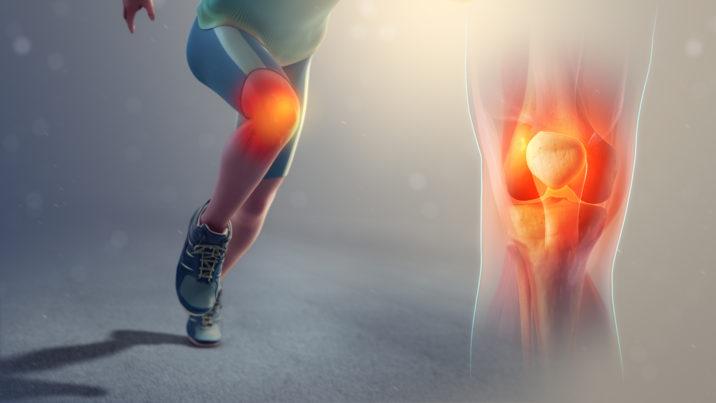 unguent pentru articulații pe bază de ardei roșu artrita simptomelor și tratamentului gleznei