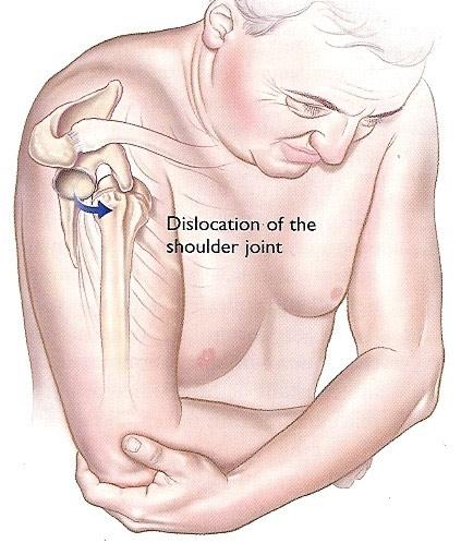 Bursita cronică a tratamentului articulațiilor umărului. Bursita Umar - Ortopedie ArcaLife