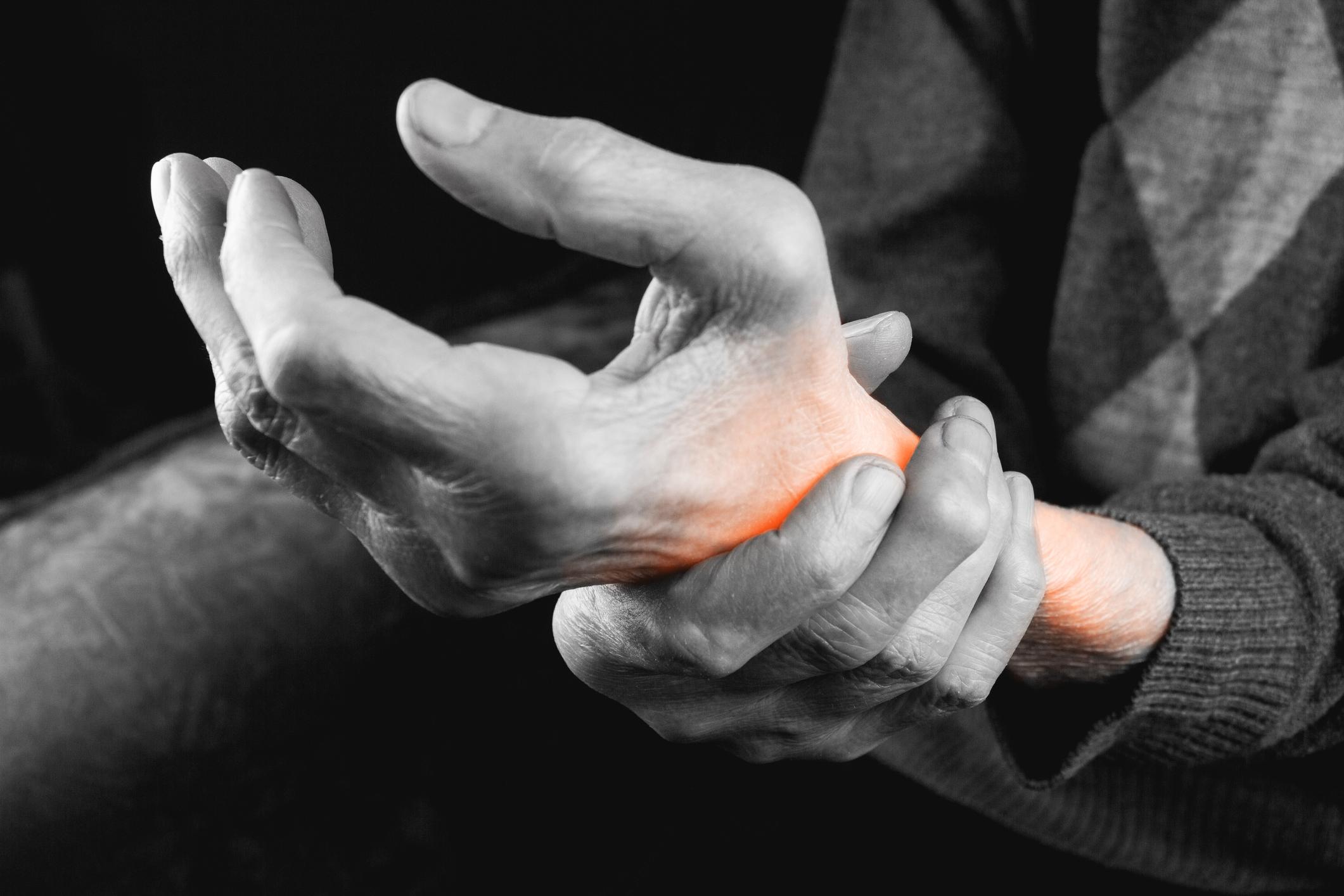 simptomele artritei mâinii