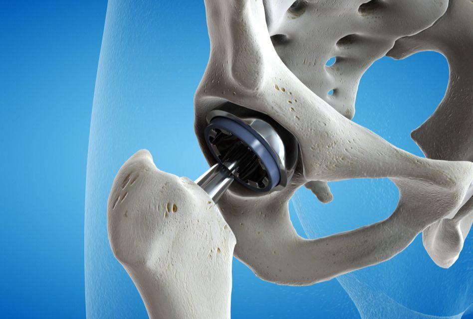 durere de la șold până la piciorul inferior
