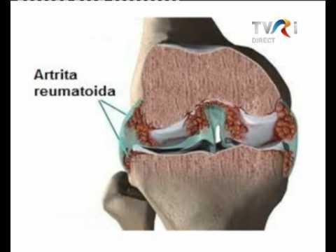 Tratament articular abhazia